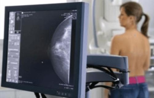 Сегодня и завтра жительницы Элисты, могут пройти маммографию в Городской поликлинике