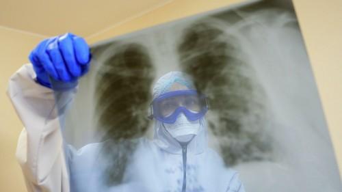За минувшие сутки выявлены 8 новых случаев заражения коронавирусом