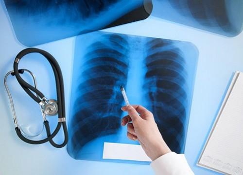 Акция, посвященная Дню борьбы с туберкулезом, продолжается в Калмыкии