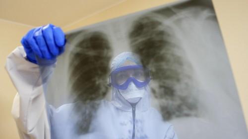 За сутки в Калмыкии выявлено 103 новых случая заражения коронавирусом